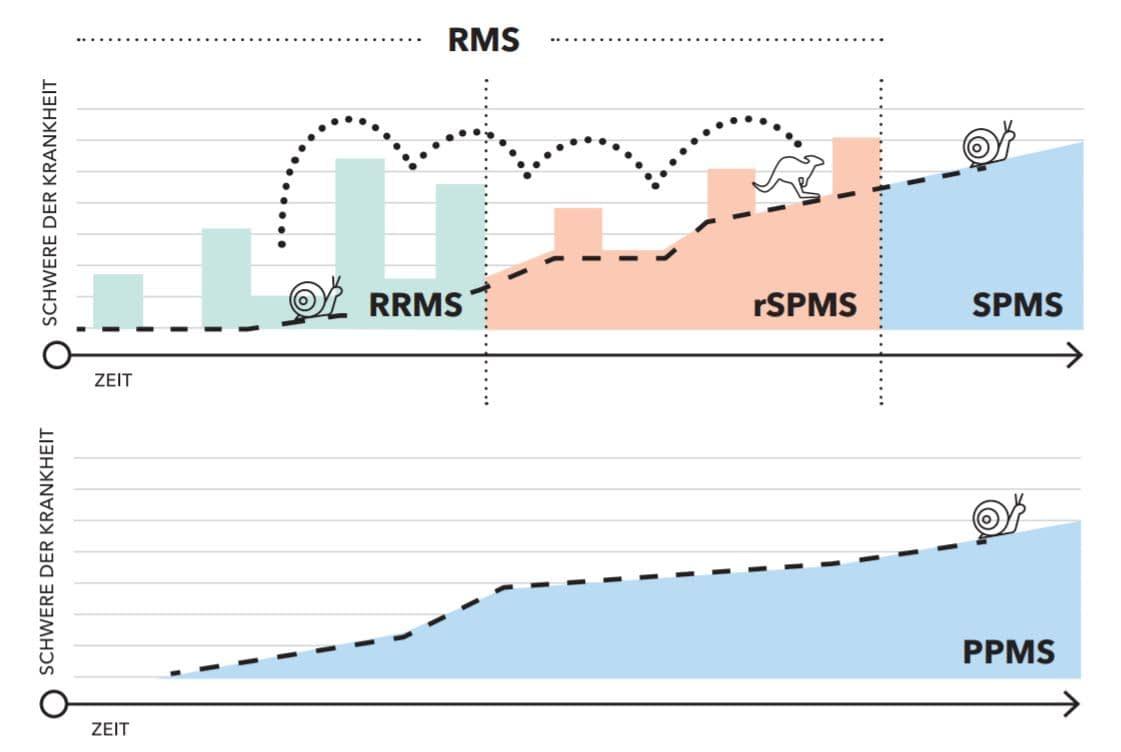 Progression bei MS