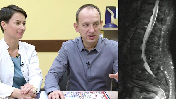 Bóle kręgosłupa - interpretacja badań obrazowych