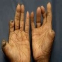 Leprosy( Hansen's Disease)