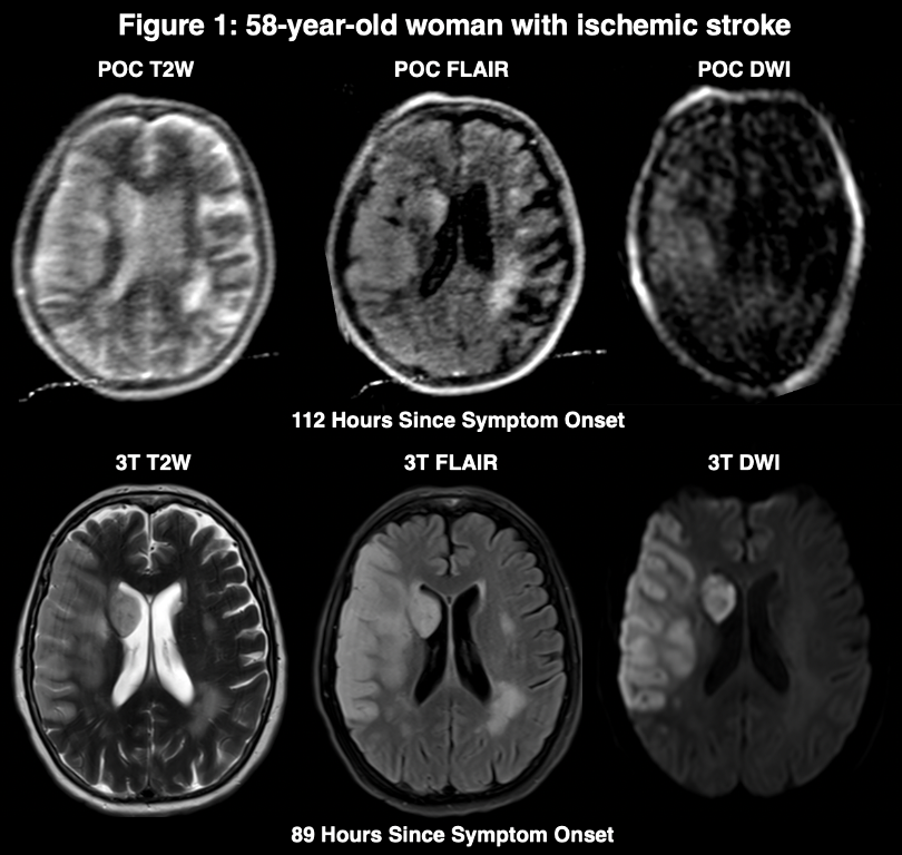poc ischemic stroke example.png