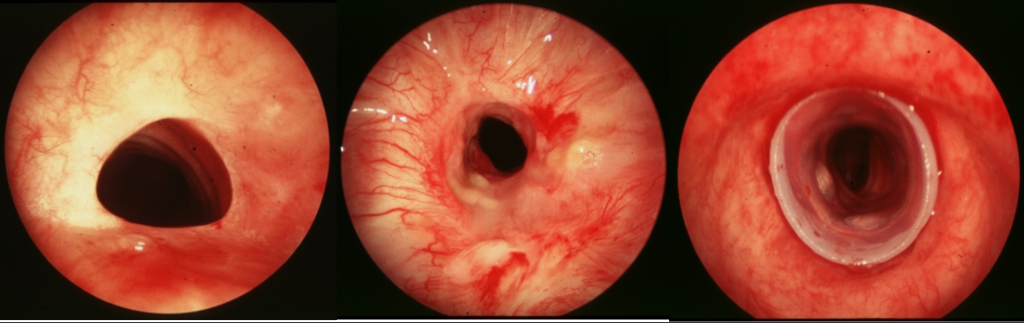 tracheal stenoses.png