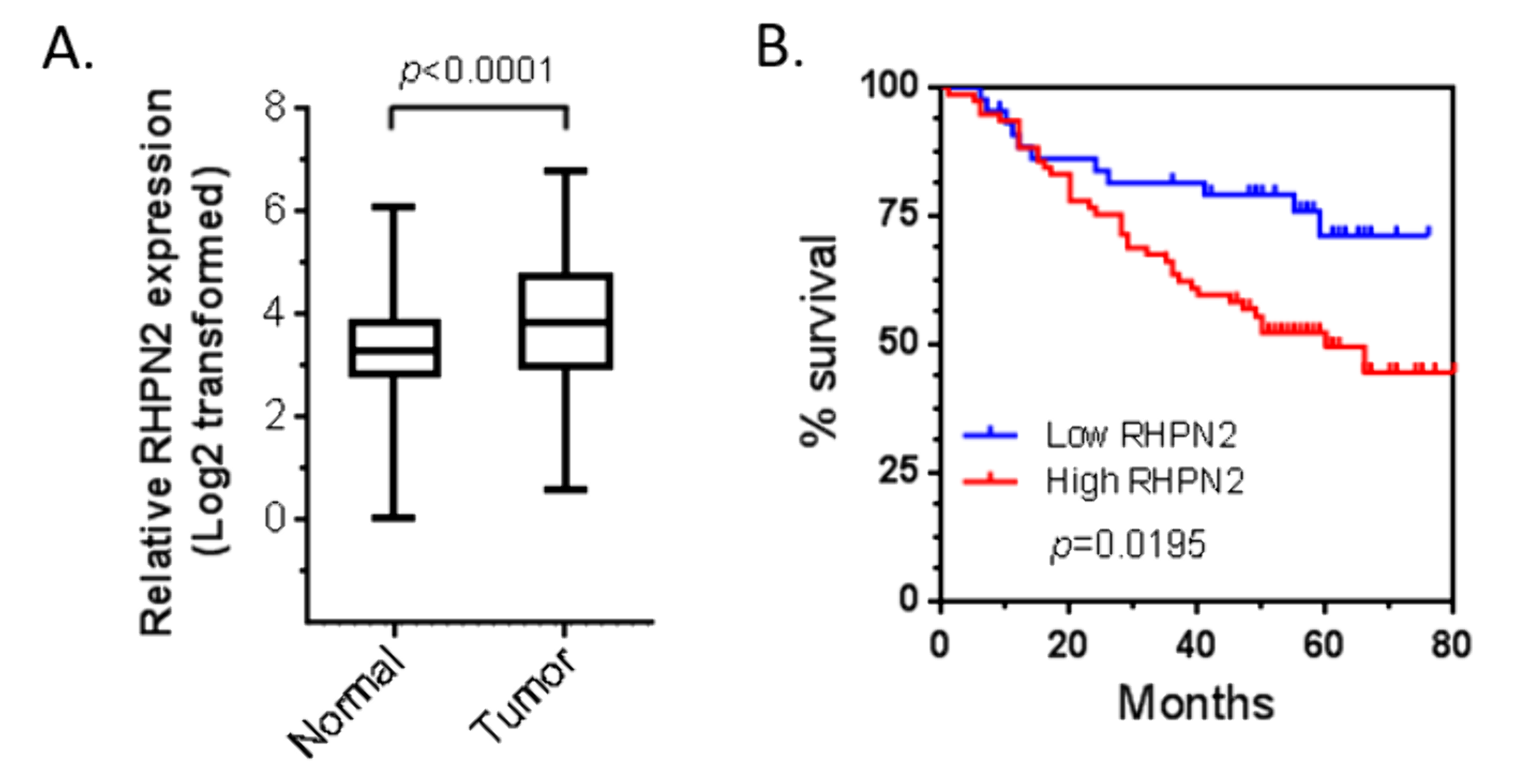 figure 1 overexpression of rhpn2 is associated with worse clinical outcome of patients with lung adenocarcinoma.png