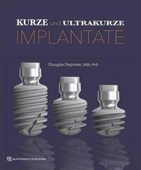 Kurze und ultrakurze Implantate