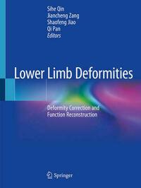 Lower Limb Deformities