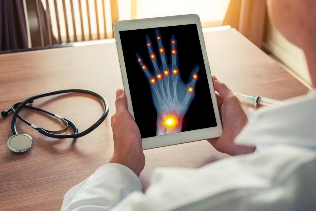 Röntgenaufnahme von Hand