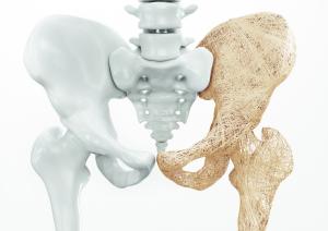 Hüftknochen mit einer osteoporotischen Seite