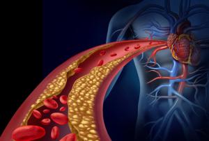 Grafik einer Blutbahn zum Herzen