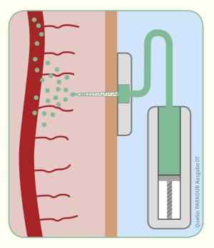 Infografik Apomorphon-Pumpe