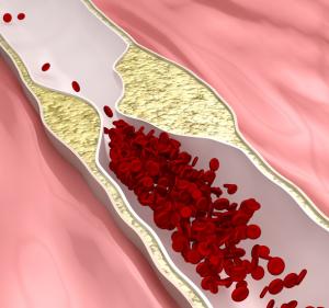 verstopfte Arterie