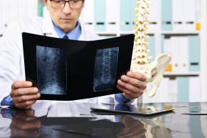 Arzt blickt auf Röntgenbild