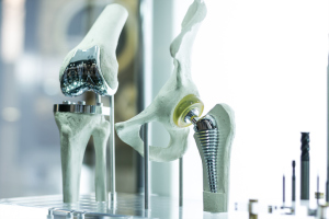 Gelenkprothesen