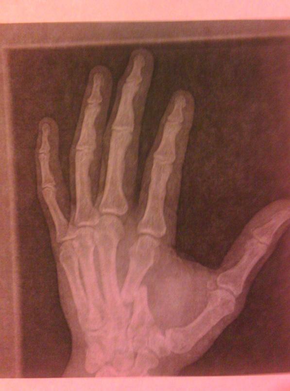 Anche Josh Barnett aveva la mano rotta 1