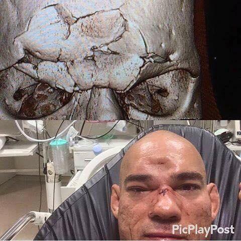 cyborg-cranio-fatturato