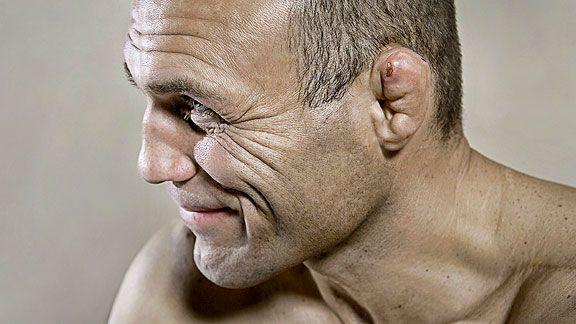 OTOEMATOMA: medaglia o cicatrice? (by Paolo Strazzullo) 1