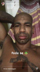 Erberth Santos fa il rito del Kambo, con il veleno di una rana amazzonica (foto) 4