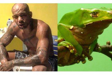 Erberth Santos fa il rito del Kambo, con il veleno di una rana amazzonica (foto) 2