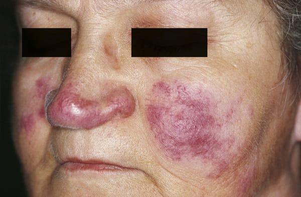 Lupus perniosarkoidos