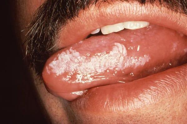 Oral hårig leukoplaki