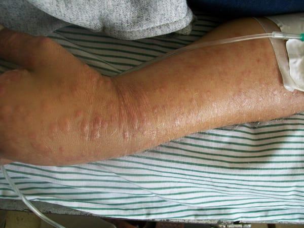 Kutant T-cellslymfom