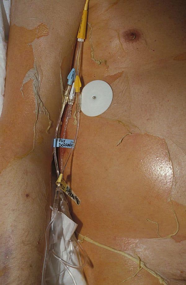 Toxisk epidermal nekrolys1