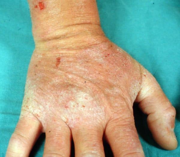 Dermatitis herpetiformis2
