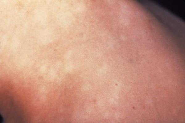 Syfilisutslag2