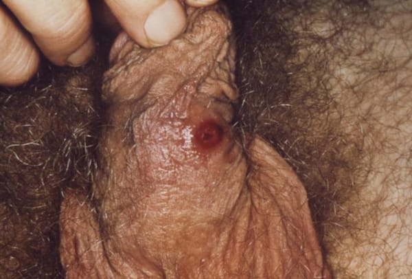 syfilischanker