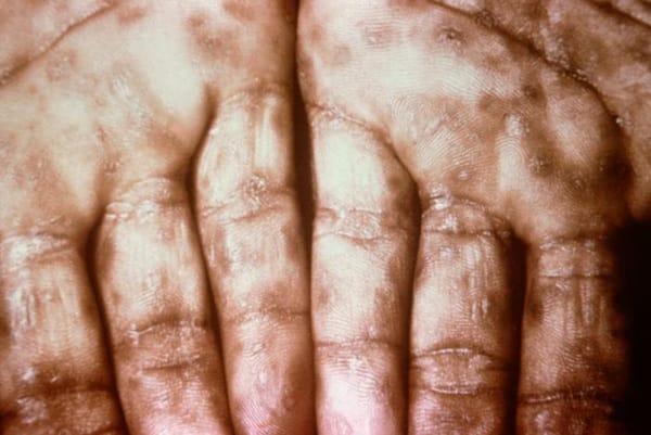 syfilis händer