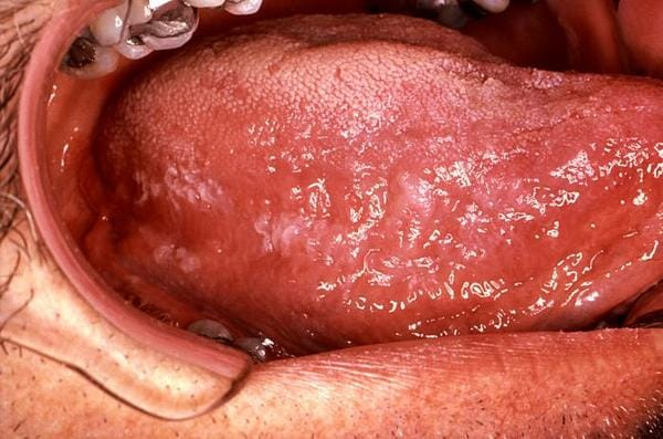 oral hårig leukoplaki2