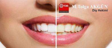 Diş Hekimi M.Tolga AKGÜN