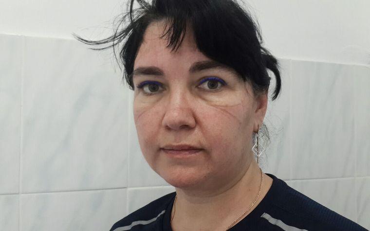 Сліди від захисту на обличчі Ольги після чергової робочої зміни