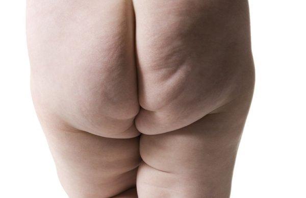 Afbeelding blog 'Overgewicht bij kinderen'