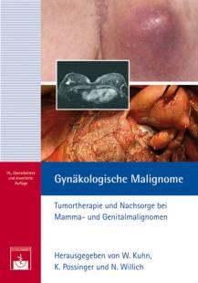 gynakologische_malignome.pdf