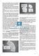 Geeignete Dokumentationsformen für das mündliche Erzählen: Unterrichtsidee Thumbnail 4