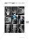 Lernspiel zum Stütz- und Bewegungsapparat: Spielanleitung, Spielfeld, Skelett-Puzzleteile, Fragen, Spielkarten, Röntgenbilder Kontrollbogen, Lösungsbogen Thumbnail 27