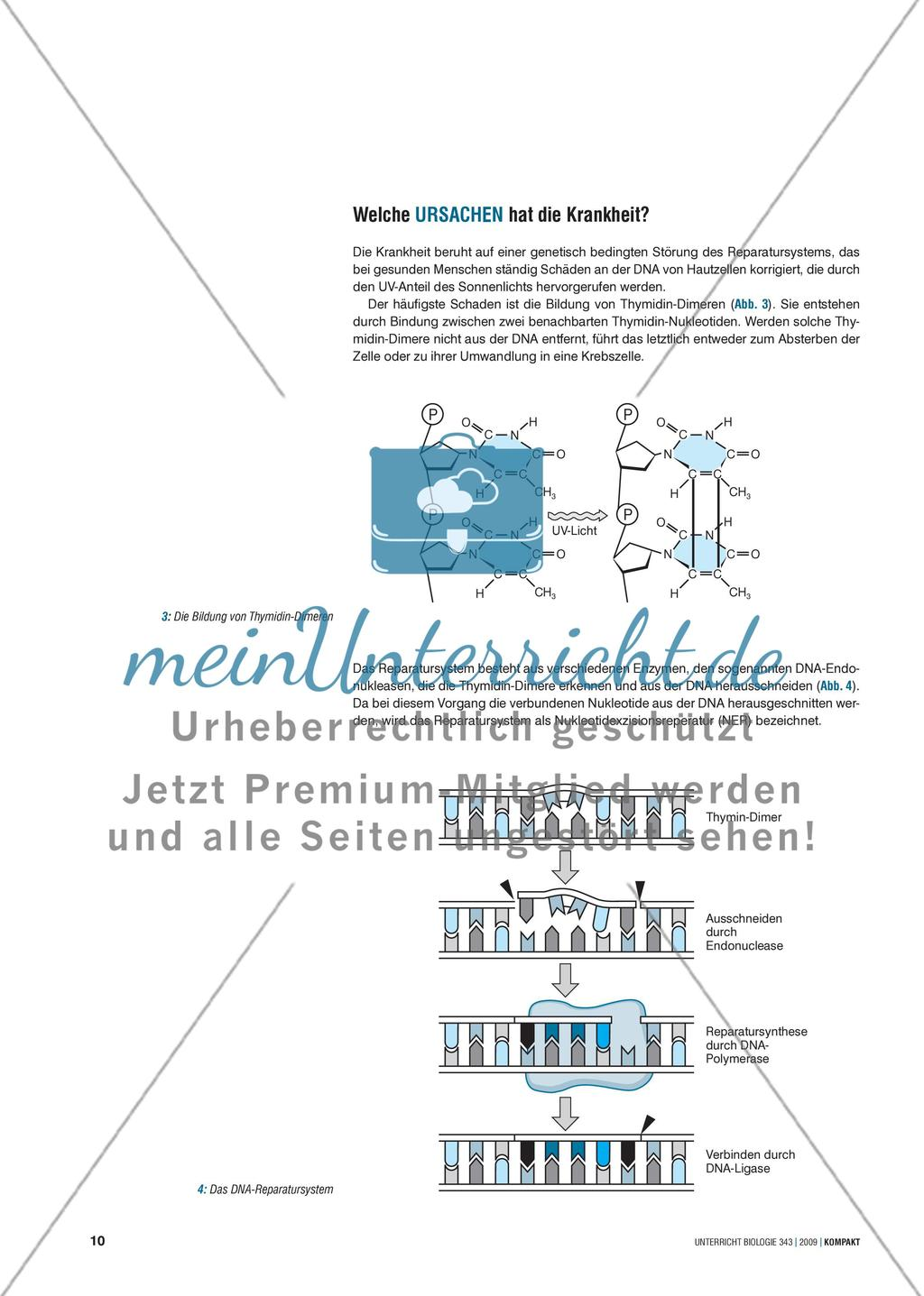 """Genetik: Untersuchung der erblich bedingten Krankheit Xeroderma pigmentosum (""""Mondscheinkinder"""") Preview 2"""