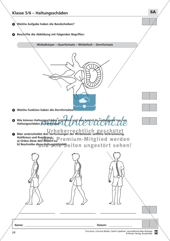 LZK  Klasse 5/6 zum Thema Haltungsschäden Preview 3
