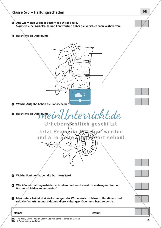 LZK  Klasse 5/6 zum Thema Haltungsschäden Preview 4
