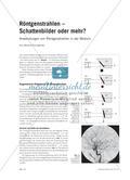 Röntgenstrahlen – Schattenbilder oder mehr?: Anwendungen von Röntgenstrahlen in der Medizin Preview 1