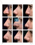 Deine Nase passt mir nicht! - Ästhetische Forschung zu einem herausragenden Teil des Gesichts Preview 3