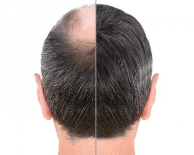 6 veelgestelde vragen over een haartransplantatie