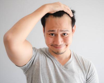 Haartransplantatie: de ervaring van Marko