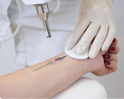 Spijt van een tattoo én het verwijderen ervan