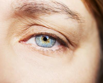 Botox: de 7 belangrijkste vragen & antwoorden