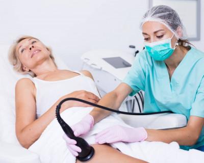 6 veelgestelde vragen over cryolipolyse