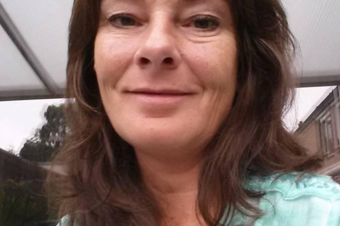 Botox voor en na foto - 11625