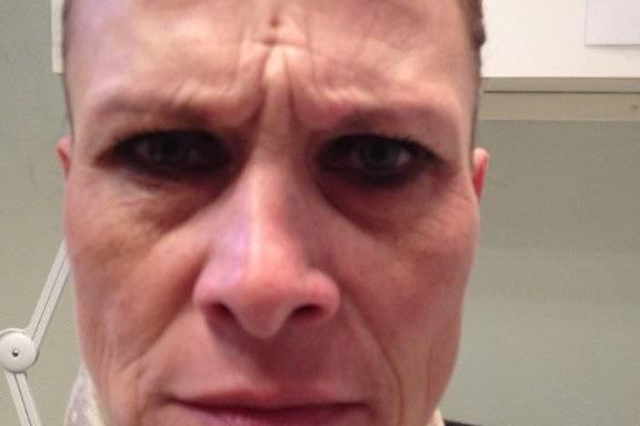Botox voor en na foto - 14464