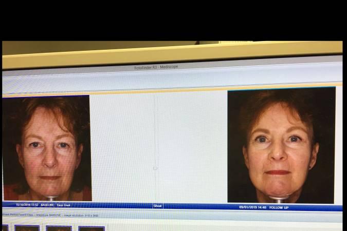 Ooglidcorrectie voor en na foto - 29541