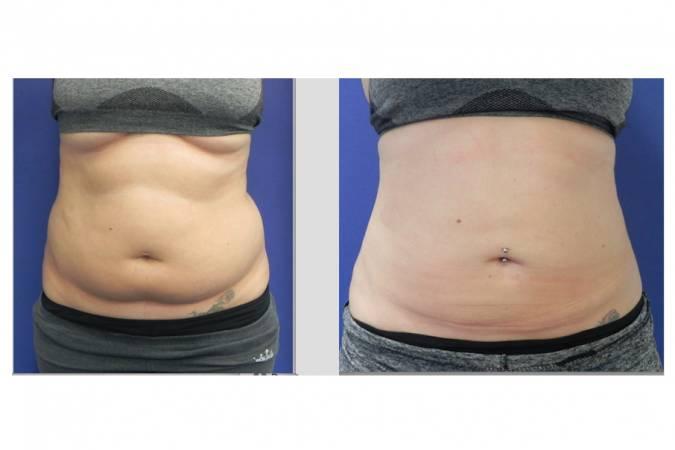 Liposuctie voor en na foto - 33321