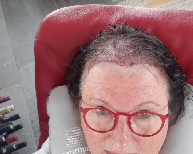 Haartransplantatie voor en na foto - 42952